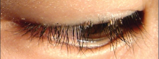 Nits In Eyelashes Www Pixshark Com Images Galleries