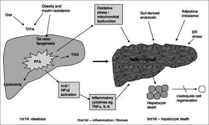 Nonalcoholic fatty liver disease synopsis of current developments figure 1 pathogenesis of nonalcoholic fatty liver disease showing the multi hit process ccuart Choice Image
