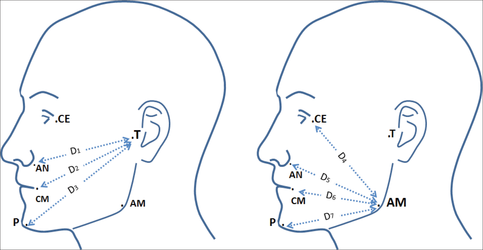 The efficacy of hyaluronic acid in postextraction sockets of