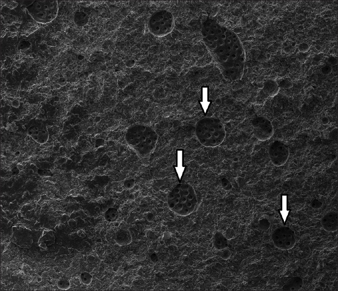 Figure 4: ×1000 image of a specimen in the mixed groups. The white arrows show exposed dentin surfaces