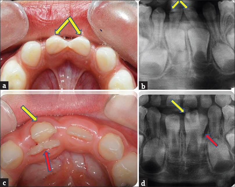 Figure 5: Intraoral view of bilaterally (a) and unilaterally (b) (patient 32) primary double teeth involving mandibular central and lateral incisors and a cropped orthopantomogram revealing fused primary double teeth and fused corresponding permanent mandibular central and lateral incisors (c and d). Cropped orthopantomogram of patient 32 showing the absence of the mandibular lateral incisor and a normal shaped mandibular central incisor