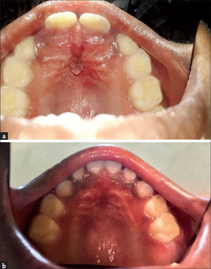Recurrent oral squamous papilloma in a pediatric patient: Case
