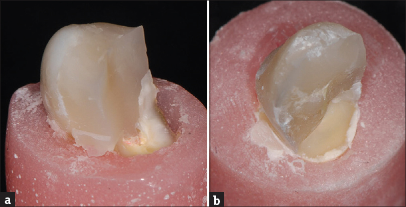 Figure 2  (a) Unfavorable and (b) favorable fracture types occurring in the  teeth ce6fc40d749
