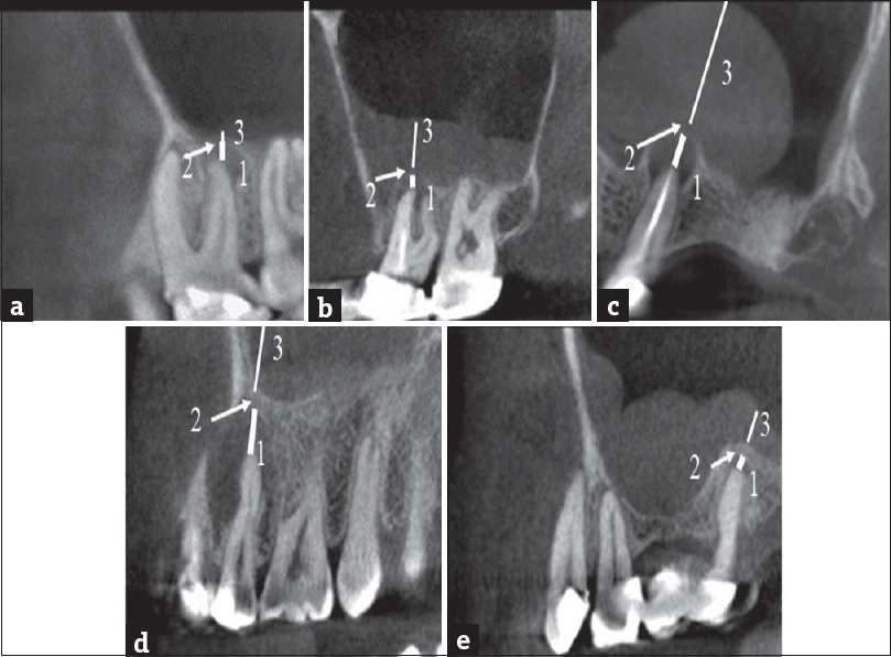 Evaluation of the effect of apical lesion on mucosal