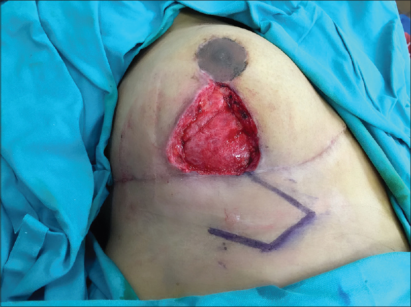 Figure 3: The local Limberg-like fasciocutaneous flap planned for the defect area